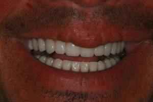 Dental Implant Makeover with AvaDent