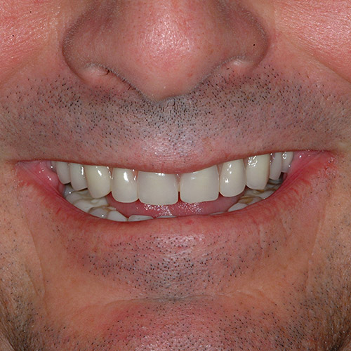 Ultimate Makeover With Guided Dental Implant Surgery