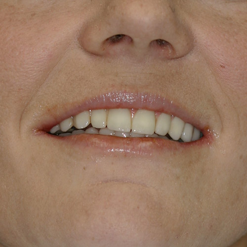 Dental Implant Treatment Relieves  Tooth Pain and Preserves Bone