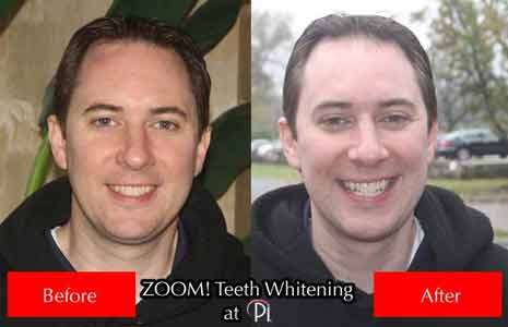 Before and After Photos Zoom Tooth Whitening
