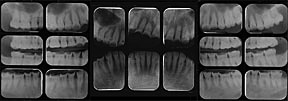 Pre-treatment full mouth xray shows acid erosion