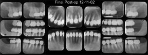 Full mouth xray taken following completion of crown treatment