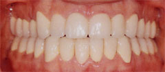 Crowns restore teeth damaged by acid erosion.