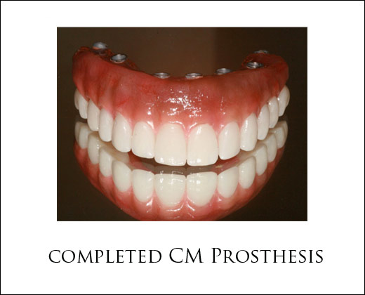 Dental Implant Prosthesis Options