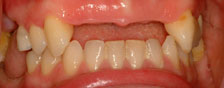 Traditional Dental Implant Treatment
