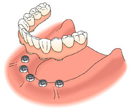 Dental Implant Treatment Solutions