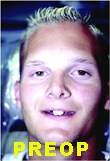 Pre-treatment photo of young man with missing teeth due to Ectodermal Dysplasia