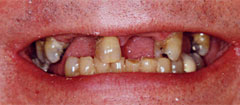 Traditional Dental Implant Photos