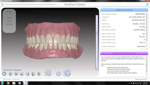 AvaDent prosthesis design in AvaDent Viewer