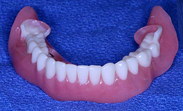 Photo of Occlusal Lock – When making dentures to be used in the Teeth In A Day® Process, it helps us to line up the teeth. It locks the teeth into position so that we can connect the removable teeth to the implants.