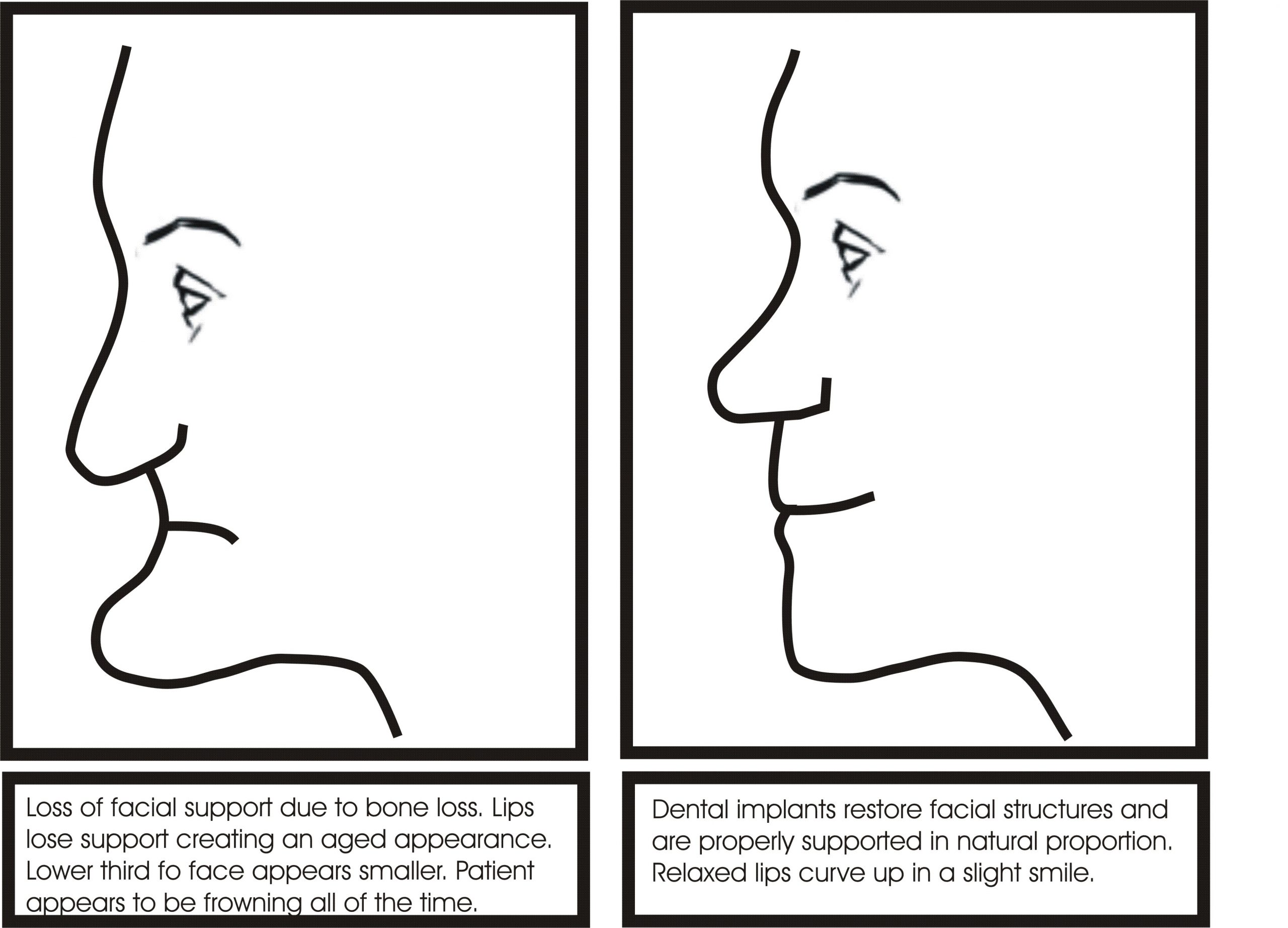 Illustration of facial collapse due to bone loss and restoration of facial proportion following dental implant treatment