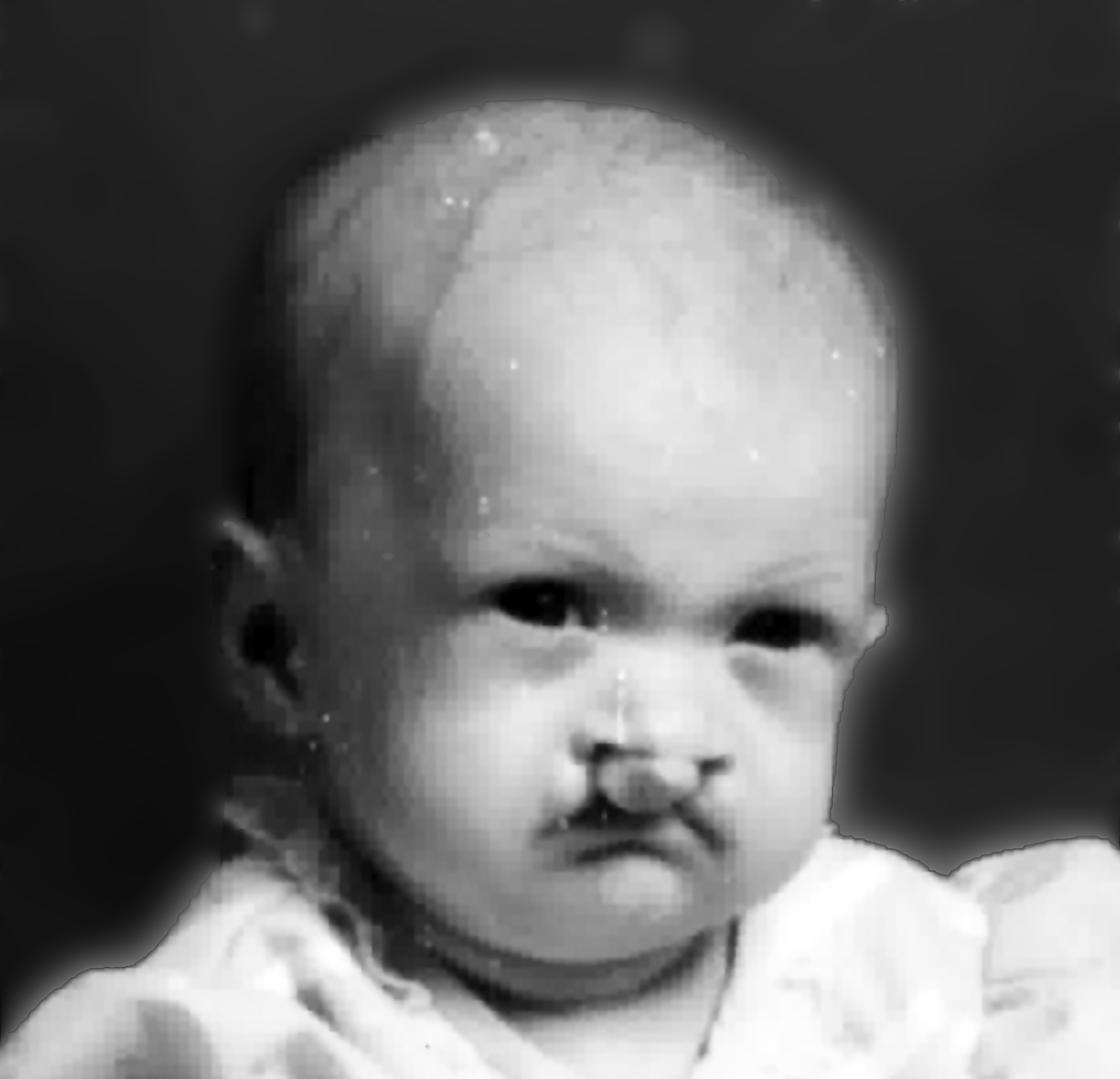 Infant with cleft lip and cleft palate