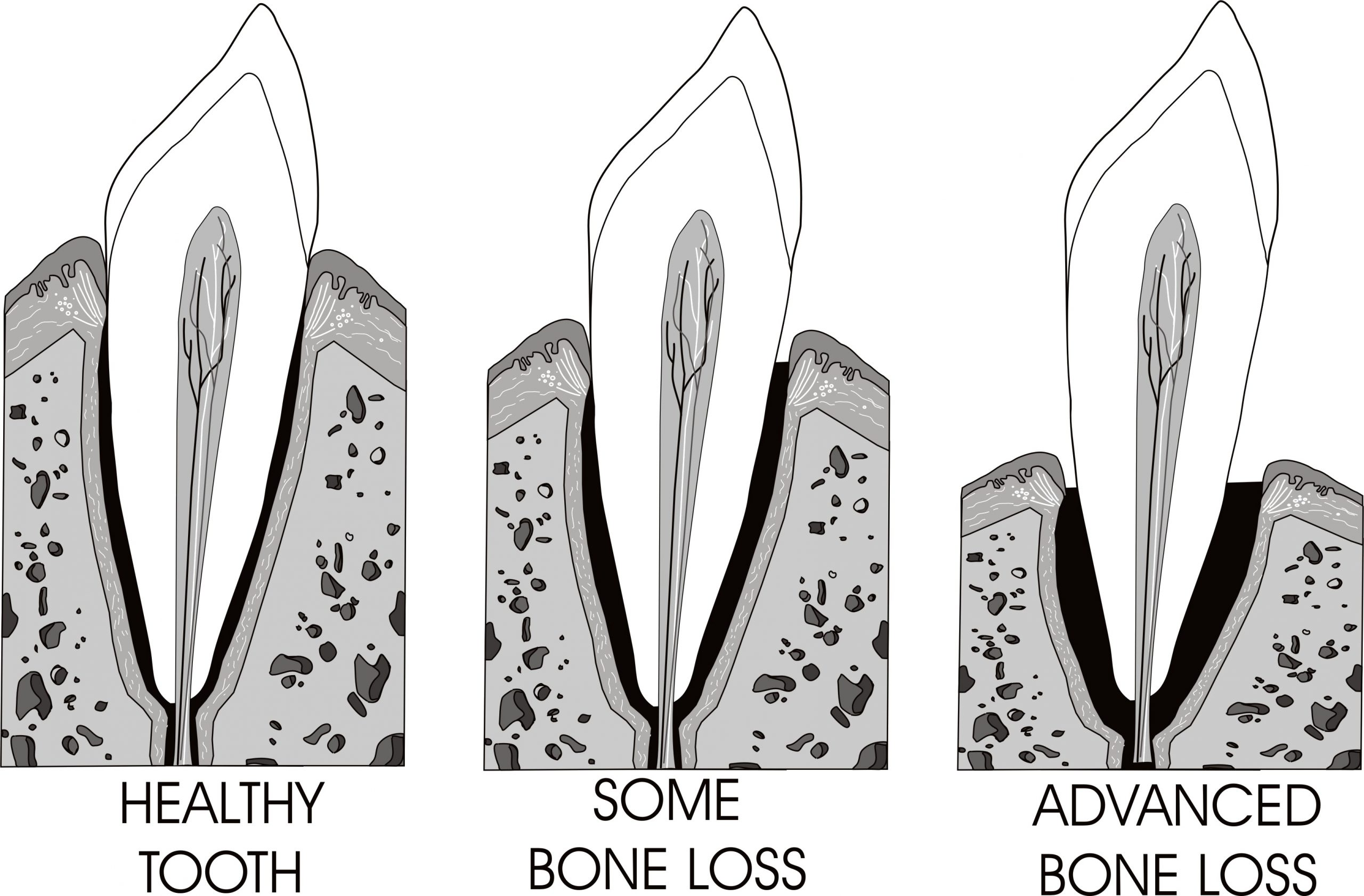 Can this tooth be saved? Illustration of healthy tooth, tooth with some bone loss, tooth with advanced bone loss
