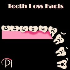 Tooth Loss Facts