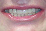 Replacement of Congenitally Missing Teeth With Dental Implant Supported Crowns