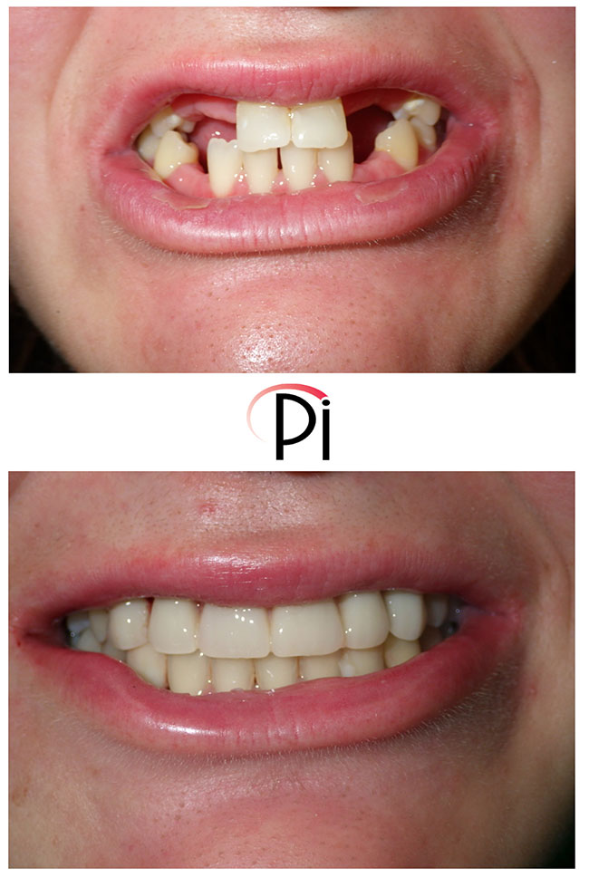 Before and After photo of Congenitally Missing Teeth with Implant Supported Crowns