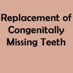Replacement of Congenitally Missing Teeth