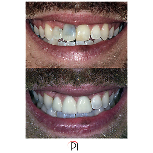 Dental Implants for Front Teeth