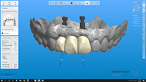 Dental Implant Supported Prosthesis Created at CM Prosthetics
